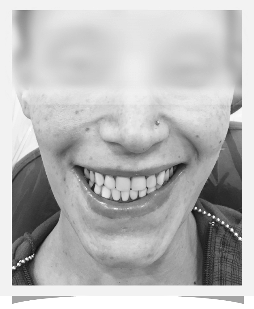 After dental surgery, cosmetic dentistry, woman with perfect smile