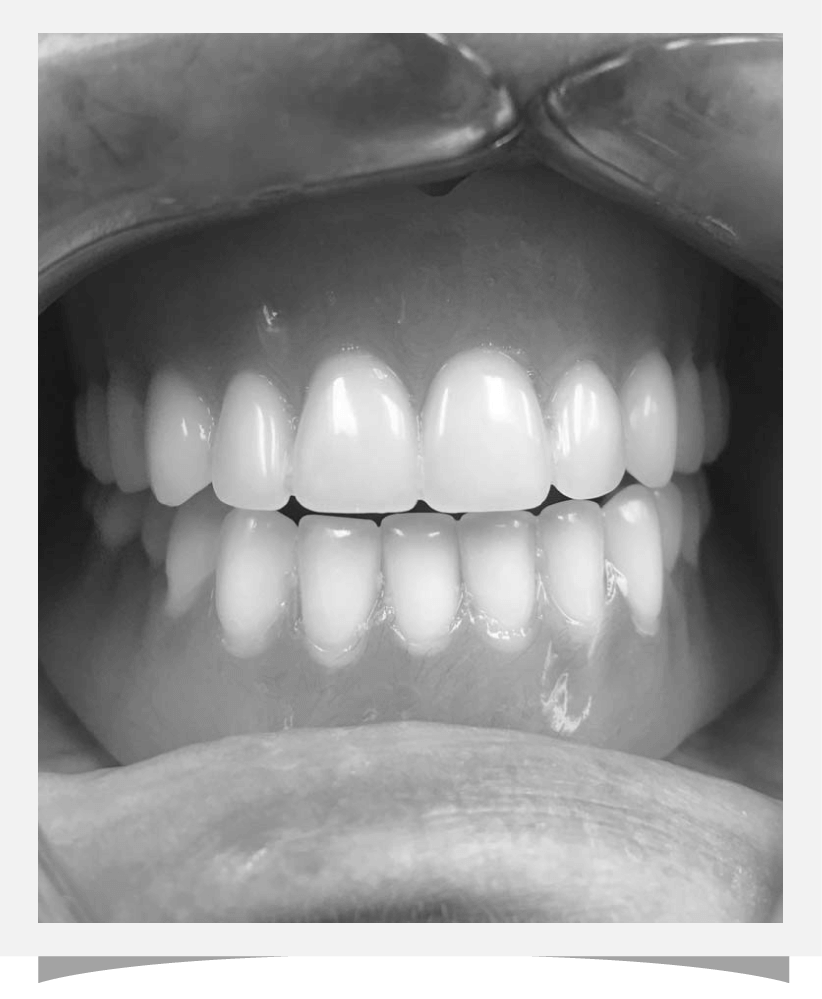 after cosmetic dentistry at Franklin Dental Centre, patient imagery