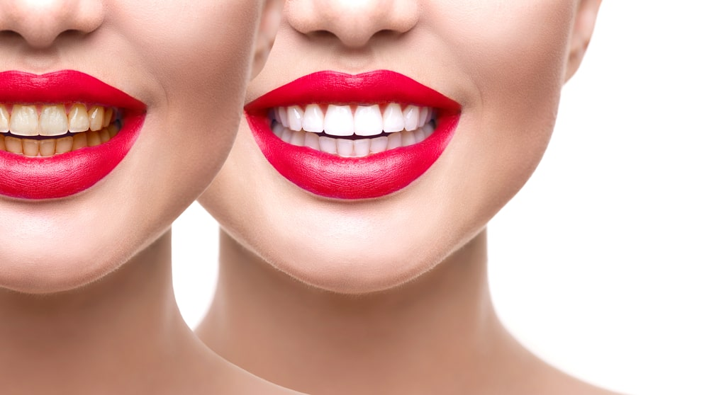 Are teeth whitening treatments worth it